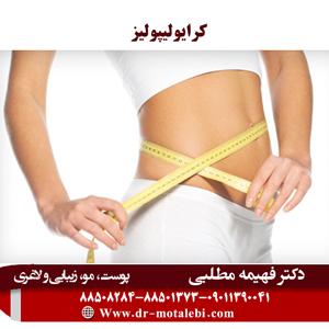کرایولیپولیز (4)
