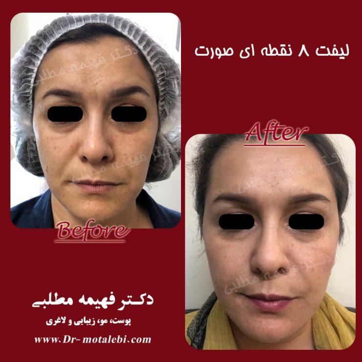لیفت صورت بدون جراحی
